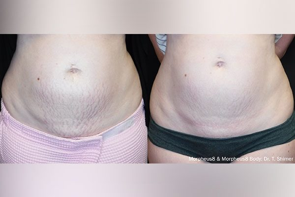 A before and after photo of the Morpheus8 Body Treatment on woman's stomach..