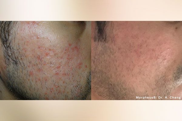 A before and after photo of the Morpheus8 Face Treatment on male face.