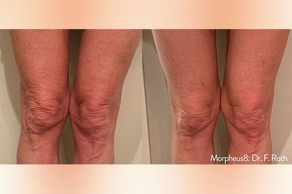 A before and after photo of the Morpheus8 Body Treatment on legs.