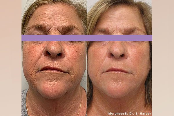 A before and after photo of the Morpheus8 Face Treatment on woman's face.